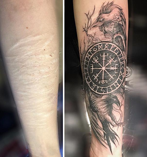 Wstydliwe I Niechciane Blizny Zamienili W Wyjątkowe Tatuaże